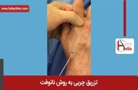 تزریق چربی | فیلم تزریق چربی | کلینیک پوست و مو هلیا | شماره 17