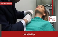 تزریق بوتاکس | فیلم تزریق بوتاکس | کلینیک پوست و مو هلیا | شماره 33