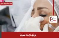 تزریق ژل | فیلم تزریق ژل | کلینیک پوست و مو هلیا | شماره 31