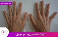 تزریق چربی | فیلم تزریق چربی | کلینیک پوست و مو نیل | شماره 18