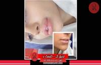 تزریق ژل | فیلم تزریق ژل | کلینیک پوست و مو رز | شماره 40