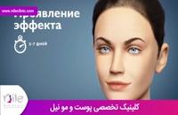 تزریق بوتاکس | فیلم تزریق بوتاکس | کلینیک پوست و مو نیل | شماره 6