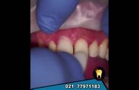 لمینت دندان در دندانپزشکی