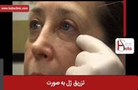 تزریق ژل | فیلم تزریق ژل | کلینیک پوست و مو هلیا | شماره 18