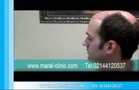 کاشت مو | فیلم کاشت مو | کلینیک پوست و مو مارال | شماره 7