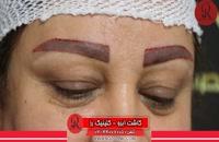 کاشت ابرو | فیلم کاشت ابرو | کلینیک پوست و مو رز | شماره51