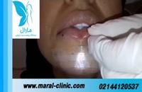 تزریق ژل | فیلم تزریق ژل | کلینیک پوست و مو مارال | شماره 13