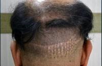کاشت مو | فیلم کاشت مو | کلینیک پوست و مو رز | شماره26