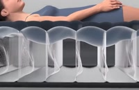 تخت خواب طبی اینتکس