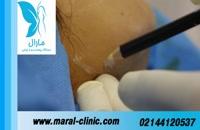 تزریق چربی | فیلم تزریق چربی | کلینیک پوست و مو مارال | شماره 16