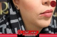 تزریق چربی | فیلم تزریق چربی | کلینیک پوست و مو رز | شماره27