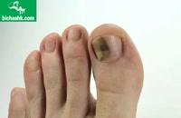 آیا می دانید برای درمان قارچ ناخن چه باید کرد ؟ - مجله پزشکی بیچشک