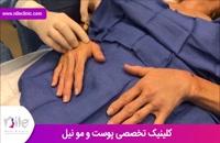 تزریق چربی | فیلم تزریق چربی | کلینیک پوست و مو نیل | شماره 4