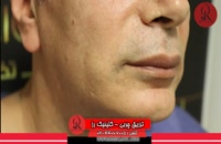 تزریق چربی | فیلم تزریق چربی | کلینیک پوست و مو رز | شماره34