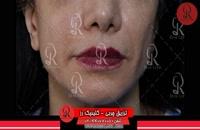 تزریق چربی | فیلم تزریق چربی | کلینیک پوست و مو رز | شماره 58