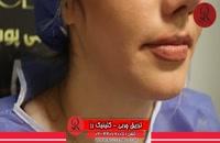 تزریق چربی | فیلم تزریق چربی | کلینیک پوست و مو رز | شماره32