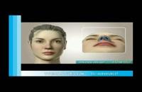 جراحی بینی | فیلم جراحی بینی | کلینیک پوست و مو مارال | شماره 1