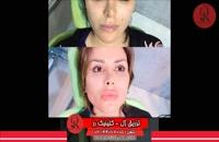 تزریق ژل | فیلم تزریق ژل | کلینیک پوست و مو رز |27