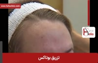 تزریق بوتاکس | فیلم تزریق بوتاکس | کلینیک پوست و مو هلیا | شماره 8
