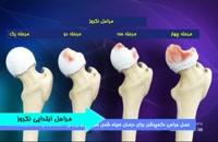 درمان دکمپرشن در سیاه شدن سر استخوان ران