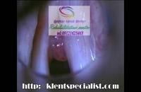 مجهزترین مرکز درمان اختلالات حنجره در البرز 09121623463|گفتار توان گستر البرز