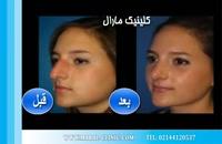 جراحی بینی | فیلم جراحی بینی | کلینیک پوست و مو مارال | شماره 2