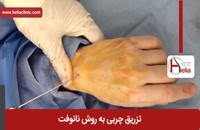 تزریق چربی | فیلم تزریق چربی | کلینیک پوست و مو هلیا | شماره 9