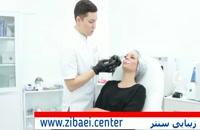 تزریق ژل به لب - برجسته کردن لب با تزریق چربی - زیبایی سنتر