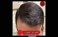 کاشت مو | فیلم کاشت مو | کلینیک پوست و مو رز | شماره 52