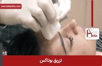 تزریق بوتاکس | فیلم تزریق بوتاکس | کلینیک پوست و مو هلیا | شماره 9