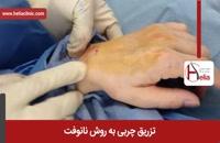 تزریق چربی | فیلم تزریق چربی | کلینیک پوست و مو هلیا | شماره 18