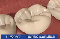 فیشورسیلانت دندانها یعنی چی؟