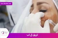 تزریق ژل | فیلم تزریق ژل | کلینیک پوست و مو نیل | شماره 10