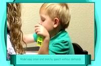 دکتر خوب برای لکنت زبان.09120452406بیگی،درمان لکنت زبان کودکان درخانه