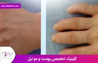 تزریق چربی | فیلم تزریق چربی | کلینیک پوست و مو نیل | شماره 6