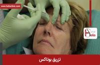 تزریق بوتاکس | فیلم تزریق بوتاکس | کلینیک پوست و مو هلیا | شماره 25