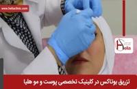 تزریق بوتاکس   فیلم تزریق بوتاکس   کلینیک پوست و مو هلیا   شماره 2