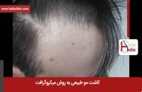 کاشت مو | فیلم کاشت مو | کلینیک پوست و مو هلیا | شماره 6