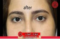 تزریق ژل | فیلم تزریق ژل | کلینیک پوست و مو رز | شماره 44