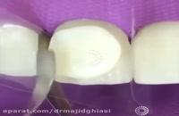 کامپوزیت ونیر -دکترمجیدقیاسی دندانپزشک زیبایی مشهد