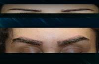 کاشت ابرو | فیلم کاشت ابرو | کلینیک پوست و مو رز | شماره75