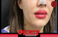 تزریق چربی | فیلم تزریق چربی | کلینیک پوست و مو رز | شماره 46