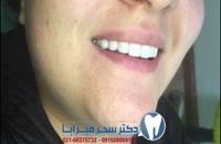 نمونه کارهای دکتر سحر میرآبا: اصلاح طرح لبخند، پالیش کردن دندان ها