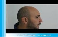 کاشت مو | فیلم کاشت مو | کلینیک پوست و مو مارال | شماره 6