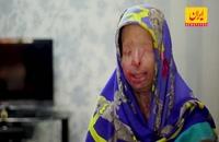 اسیدپاشی، جرمی که با مجازاتش تناسب ندارد/ دارای تصاویر دلخراش