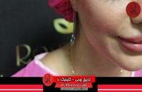 تزریق چربی | فیلم تزریق چربی | کلینیک پوست و مو رز | شماره36