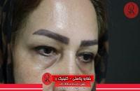 بلفاروپلاستی | فیلم بلفاروپلاستی | کلینیک پوست و مو رز | شماره3