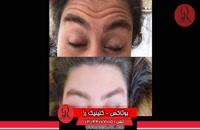 تزریق بوتاکس | فیلم تزریق بوتاکس | کلینیک پوست و مو رز | شماره 19