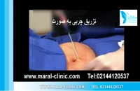 تزریق چربی   فیلم تزریق چربی   کلینیک پوست و مو مارال   شماره 8