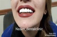 درمانگاه دندانپزشکی نسیم قیطریه - دندانپزشکی زیبایی – ارتودنسی – ایمپلنت – ونیرکامپوزیت – اصلاح طرح لبخند – لمینت دندان – لمینت سرامیکی